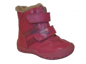 Zvětšit Protetika - Gigi fuxia, dievčenské zimná obuv